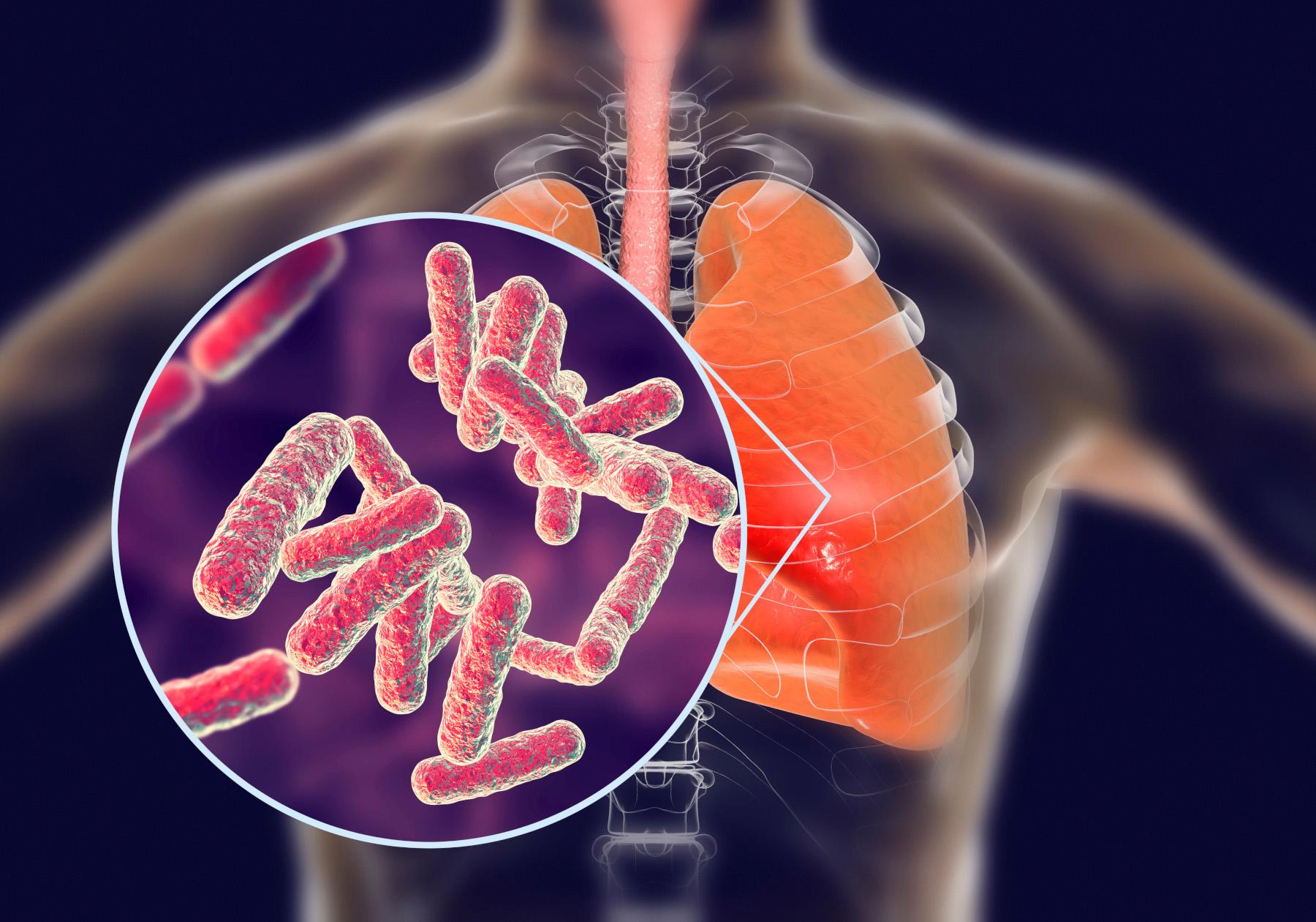 tuberculosis.'